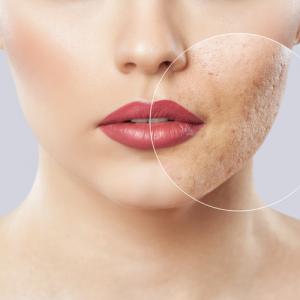 Xeo Skin Resurfacing
