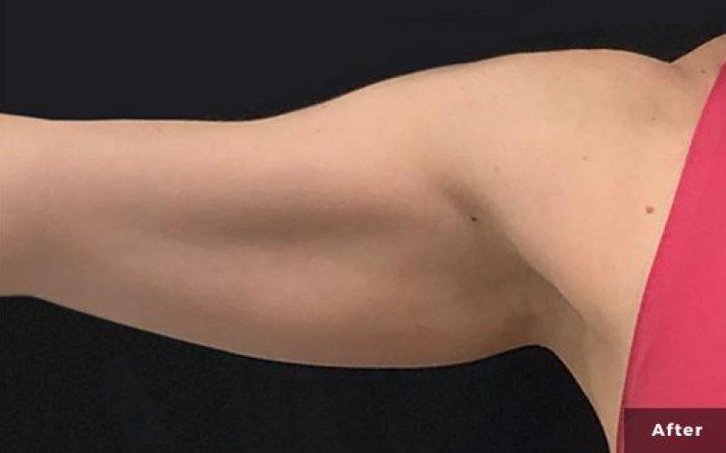 truSculpt iD-Atlanta-Medical-Aesthetics-P1-10w-after-1tx