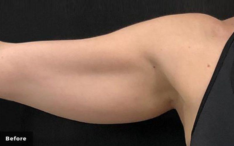 truSculpt iD-Atlanta-Medical-Aesthetics-P1-Before