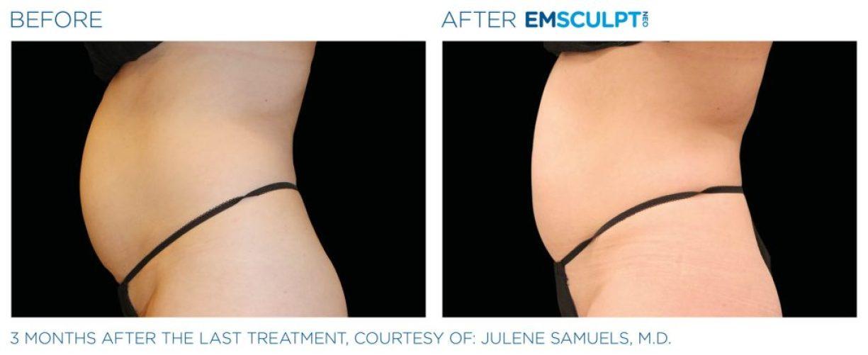 Emsculpt_neo_PIC_Ba-card-female-abdomen-007_ENUS100