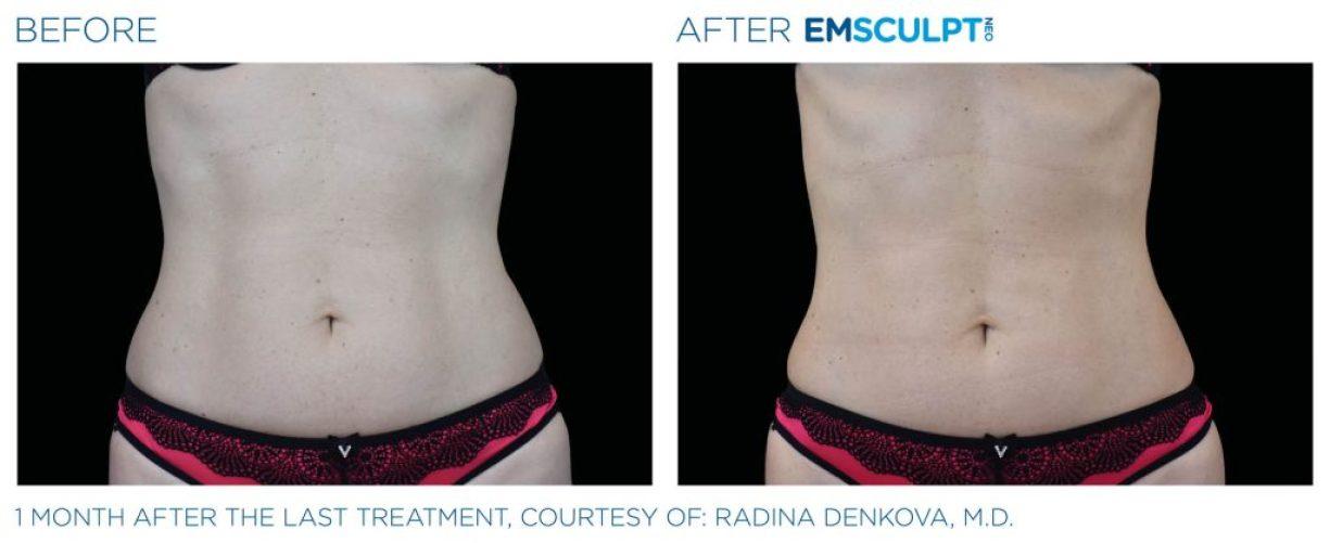 Emsculpt_neo_PIC_Ba-card-female-abdomen-018_ENUS100