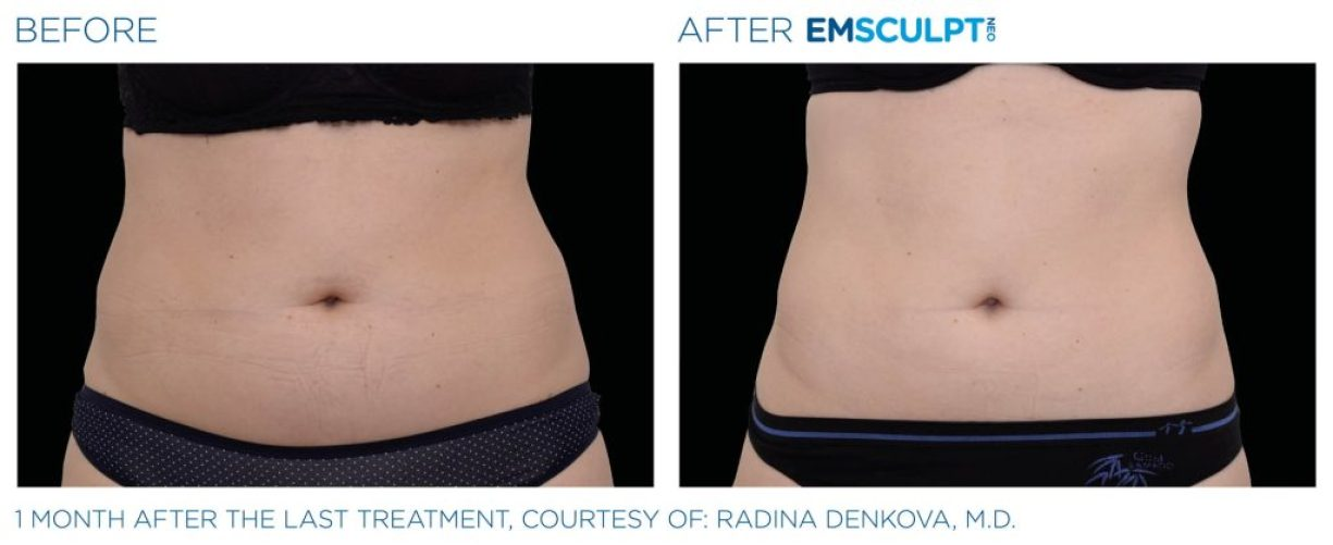 Emsculpt_neo_PIC_Ba-card-female-abdomen-019_ENUS100