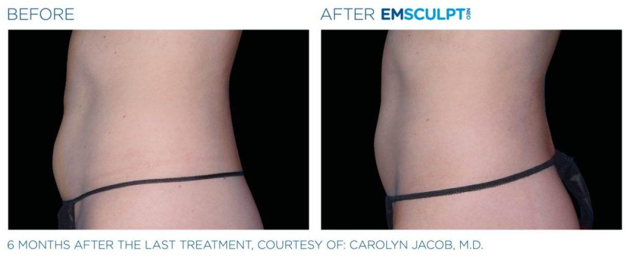 Emsculpt_neo_PIC_Ba-card-female-abdomen-041_ENUS100