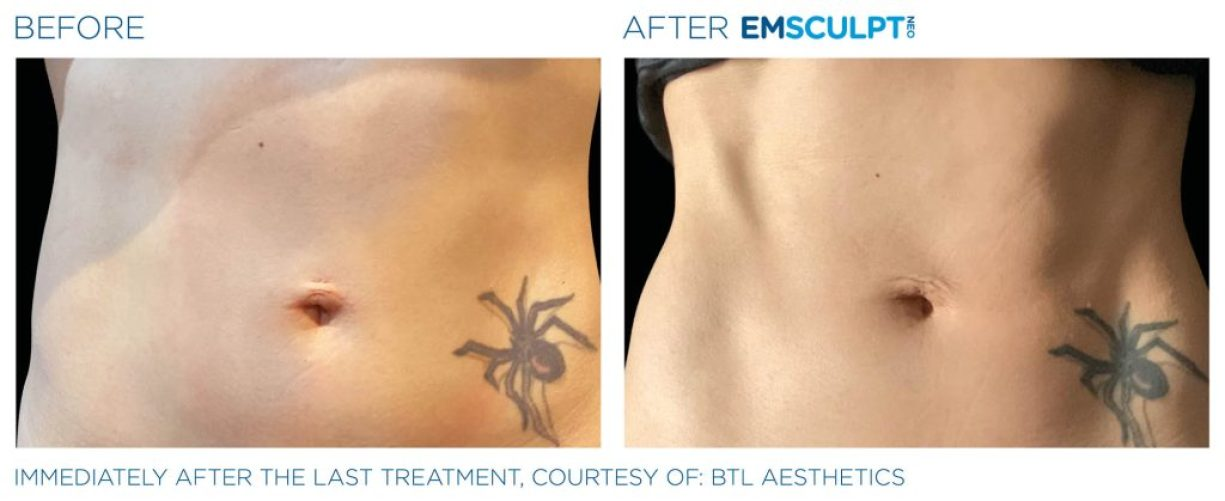 Emsculpt_neo_PIC_Ba-card-female-abdomen-048_ENUS100