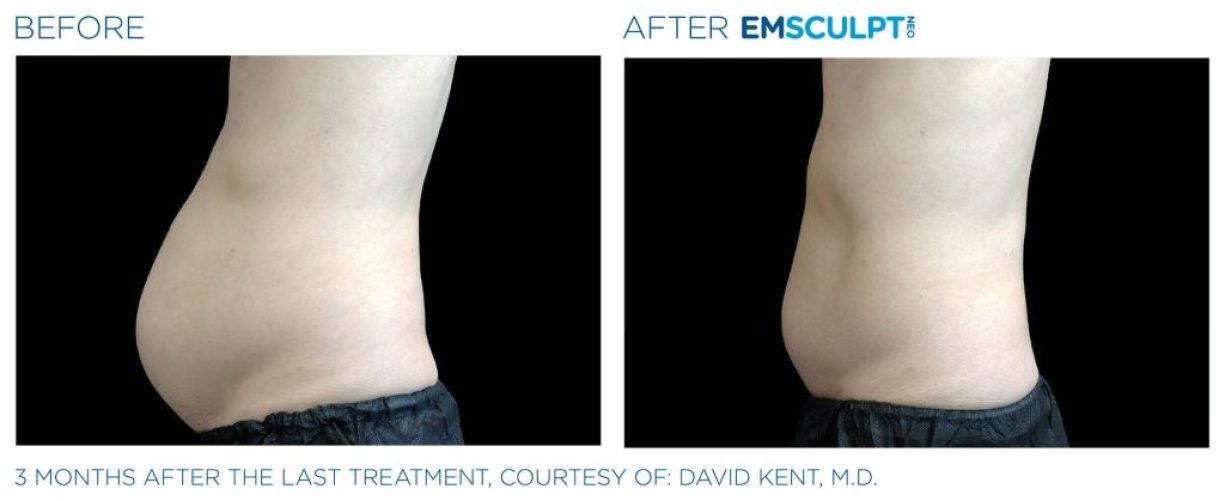 Emsculpt_neo_PIC_Ba-card-male-abdomen-022_ENUS100